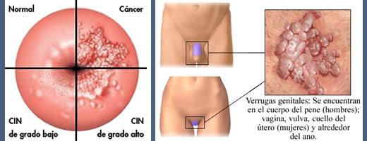 el cancer en la matriz: