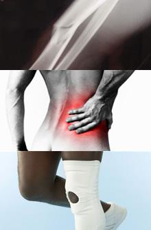 Corriente interferencial en fisioterapia